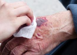 Arauto Saúde: como tratar as feridas que têm dificuldade de cicatrização?