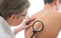Arauto Saúde: por que é importante visitar o dermatologista regularmente?