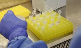 Aumenta número de pacientes internados por suspeita e confirmação da Covid-19 em Santa Cruz