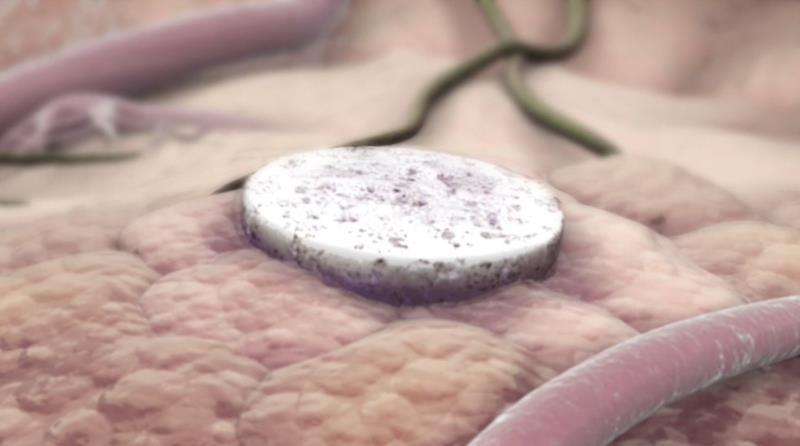 Vacina do tamanho de uma aspirina é colocada perto do local do tumor