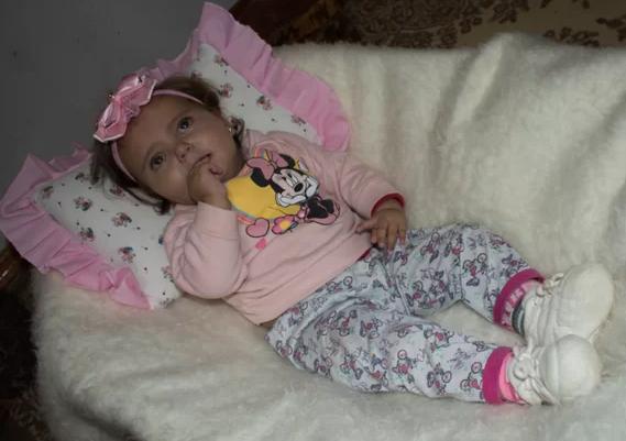Menina tem 10 meses e foi diagnosticada aos 3 com Sindrome de West