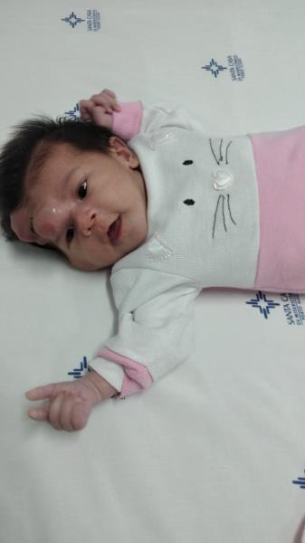 Manuela foi diagnosticada com um tumor rabdoide maligno