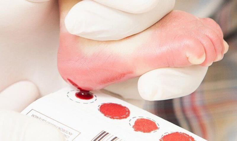 Entre as triagens que passam a ser feitas estão a Atrofia Muscular Espinhal (AME)