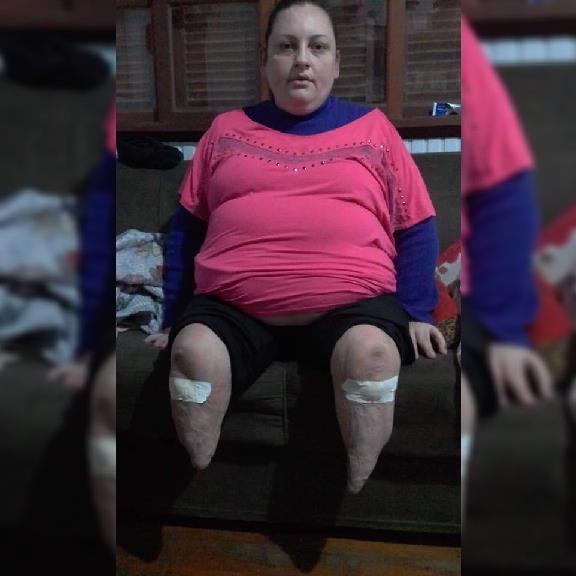 Silvani dos Santos, hoje com 36 anos, perdeu as duas pernas em um acidente de trânsito quando tinha 7 anos